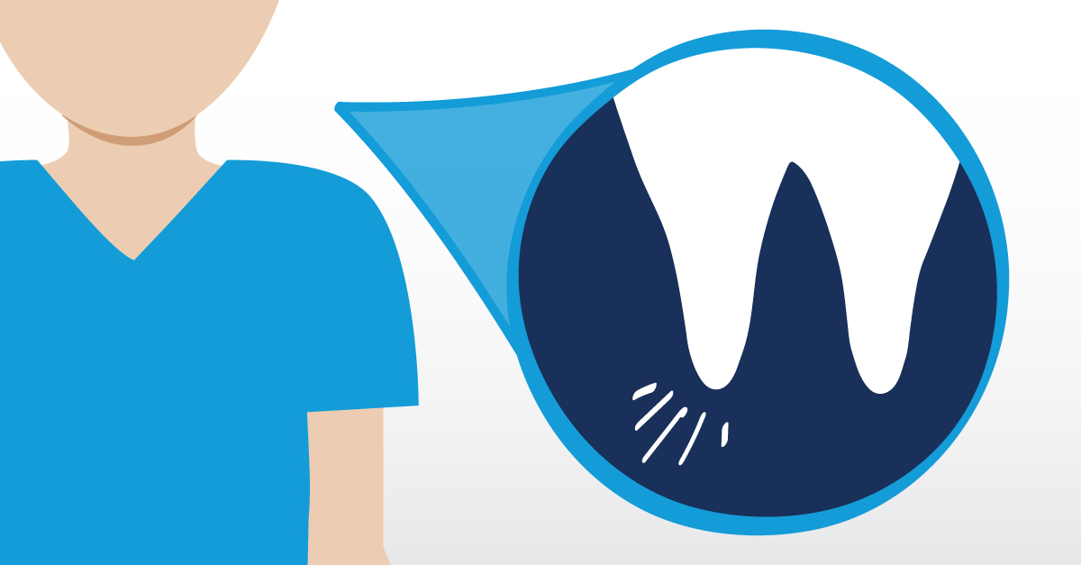 Symptoms Of A Failed Root Canal Gentlewave Procedure