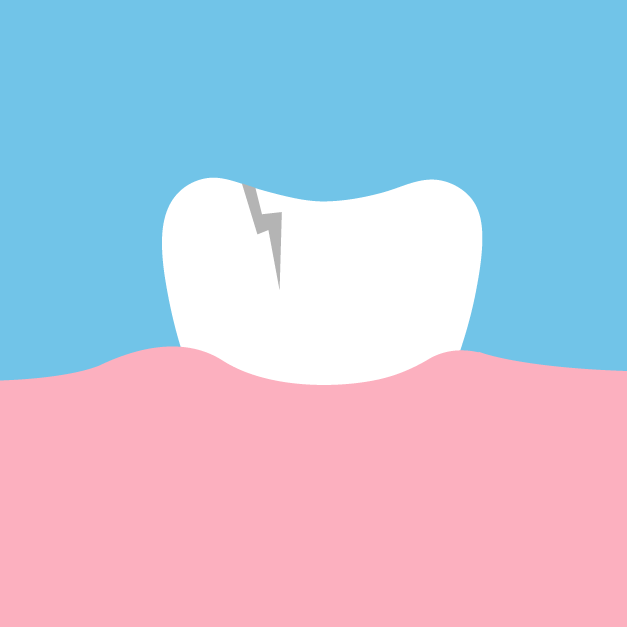 Causes of Root Canals | Damaged Tooth