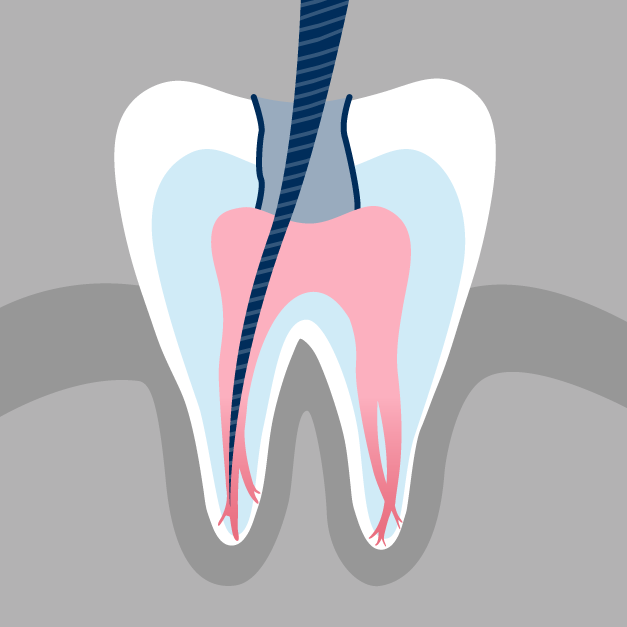 Causes of Root Canals | Repeat Dental Procedures