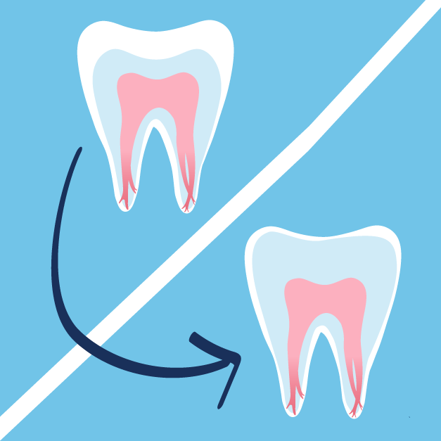 Causes of Root Canals | Root Resorption