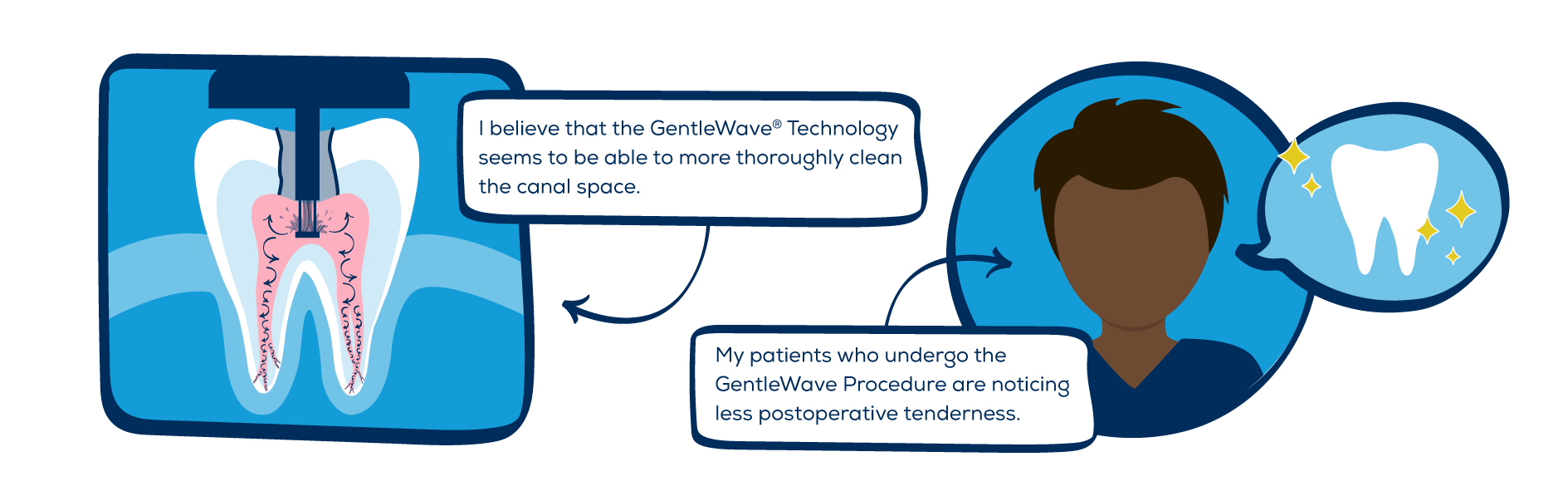 Advantages of the GentleWave Procedure