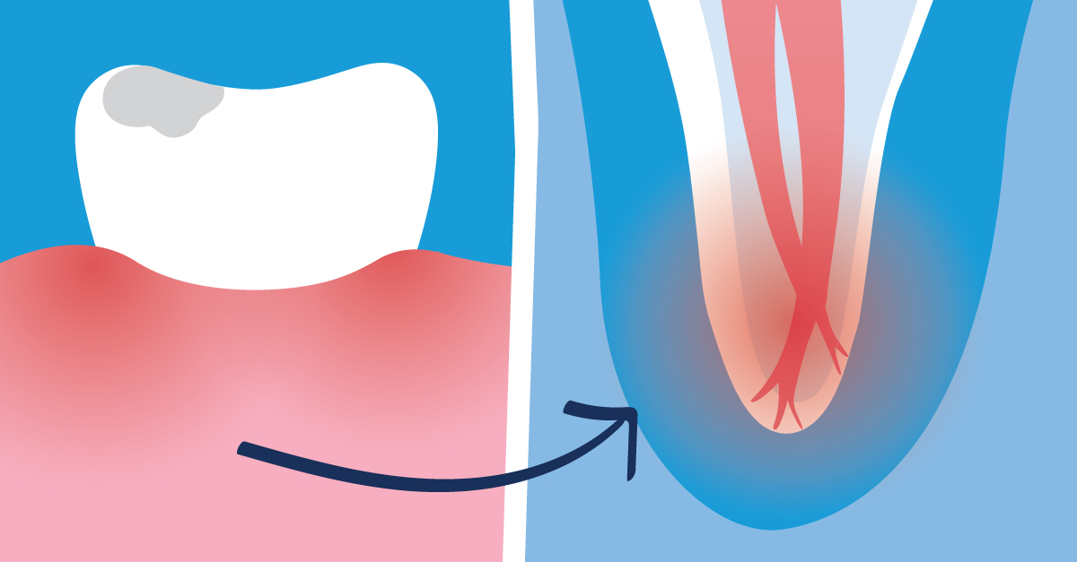 The Main Causes of Root Canal Infections | GentleWave Procedure
