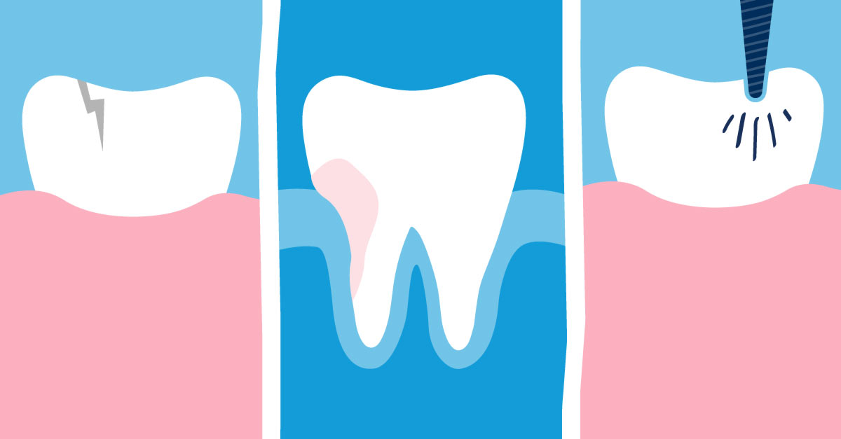 Causes of Root Canal System Infections