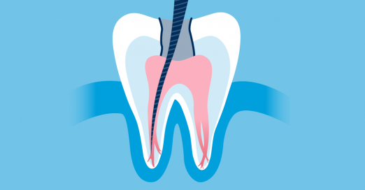 history of root canals