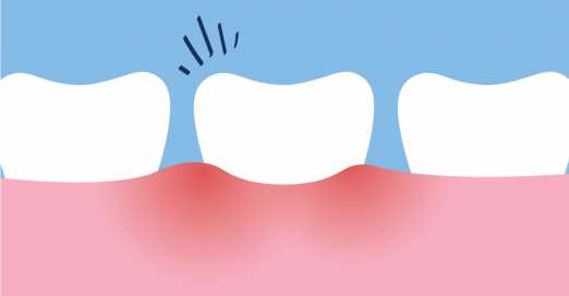 Pulpitis & Root Canal System Infections in Wisdom Teeth