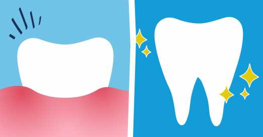 Before and After a Root Canal