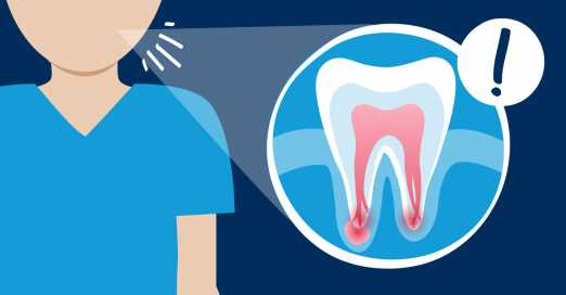 Why You Shouldn't Delay Root Canal Treatment