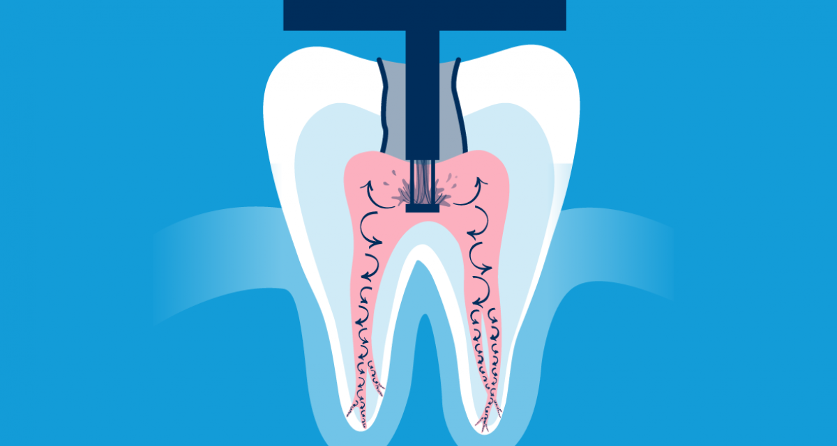 The GentleWave Procedure Root Canal Treatment