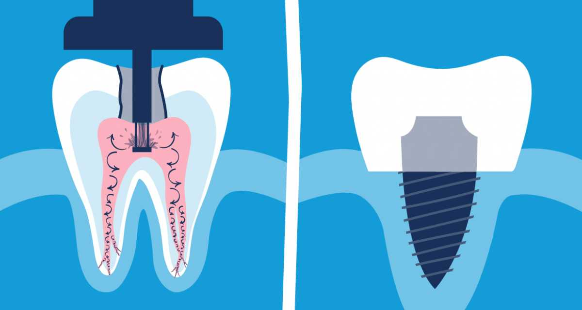 alternative to root canal | GentleWave Procedure